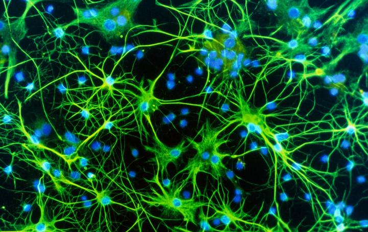 Astrocytes brain cells